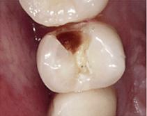 むし歯の画像