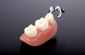 プラスチック義歯 画像